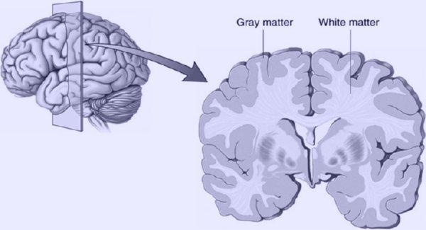 GrayMatter-WhiteMatter