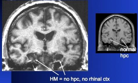 memory-hm-anatomy2